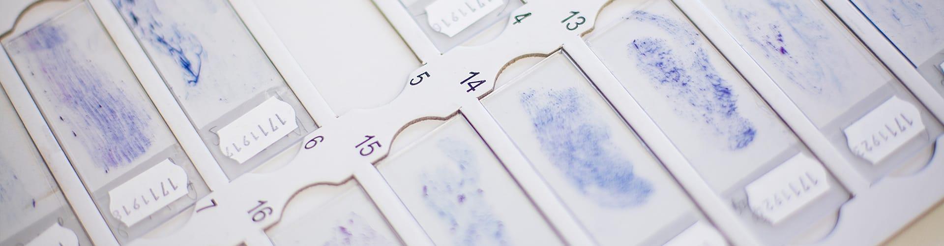 Hier sehen Sie Materialien eines Zytologielabors von Frau Dr. Berlinghoff in Lüdinghausen.